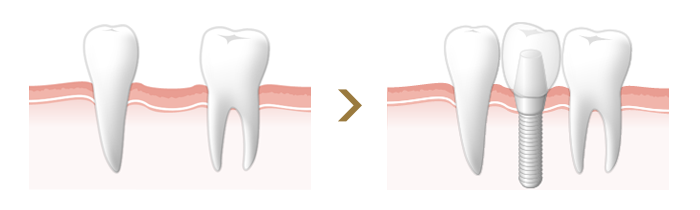 1本の歯を失った場合