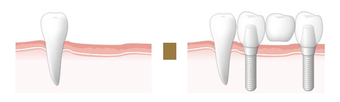 奥歯を含めて複数の歯を失った場合